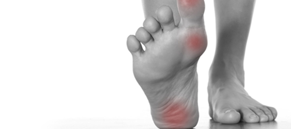 Bol u stopalu | Simptomi i liječenje plantarnog fasciitisa | mojdoktor.ba